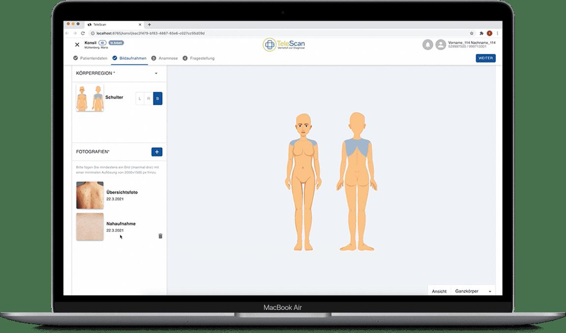 macbook-telescan